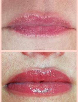 full lips behandeling gent